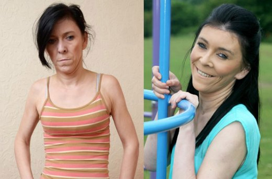 "Zara Hartshorn, Teen With ""Benjamin Button"" Syndrome, Gets Life-Changing Face-Lift 44650"