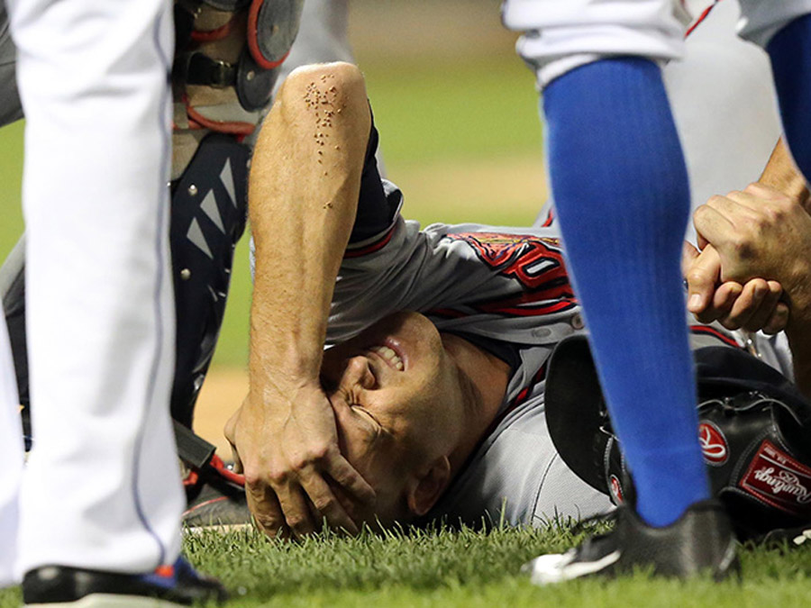 Tim Hudson suffers gruesome ankle injury covering first base 45441