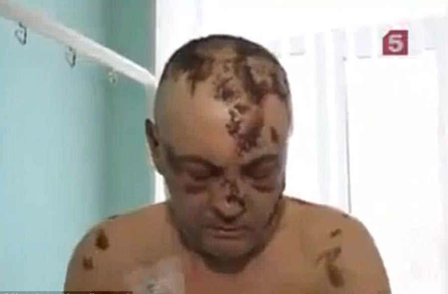 Flesh-eating krokodil drug spreads from Arizona to Chicago, as doctor says it might have been sold as heroin to unwitting victims 47246