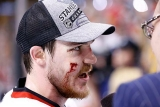 Blackhawks' Andrew Shaw takes wrist shot off the face 44604